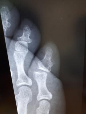 小指をぶつけただけで靱帯切れた(レントゲン写真)